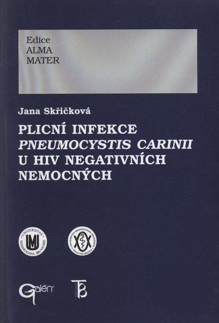 Plicní infekce Pneumocystis carinii u HIV negativních nemocných