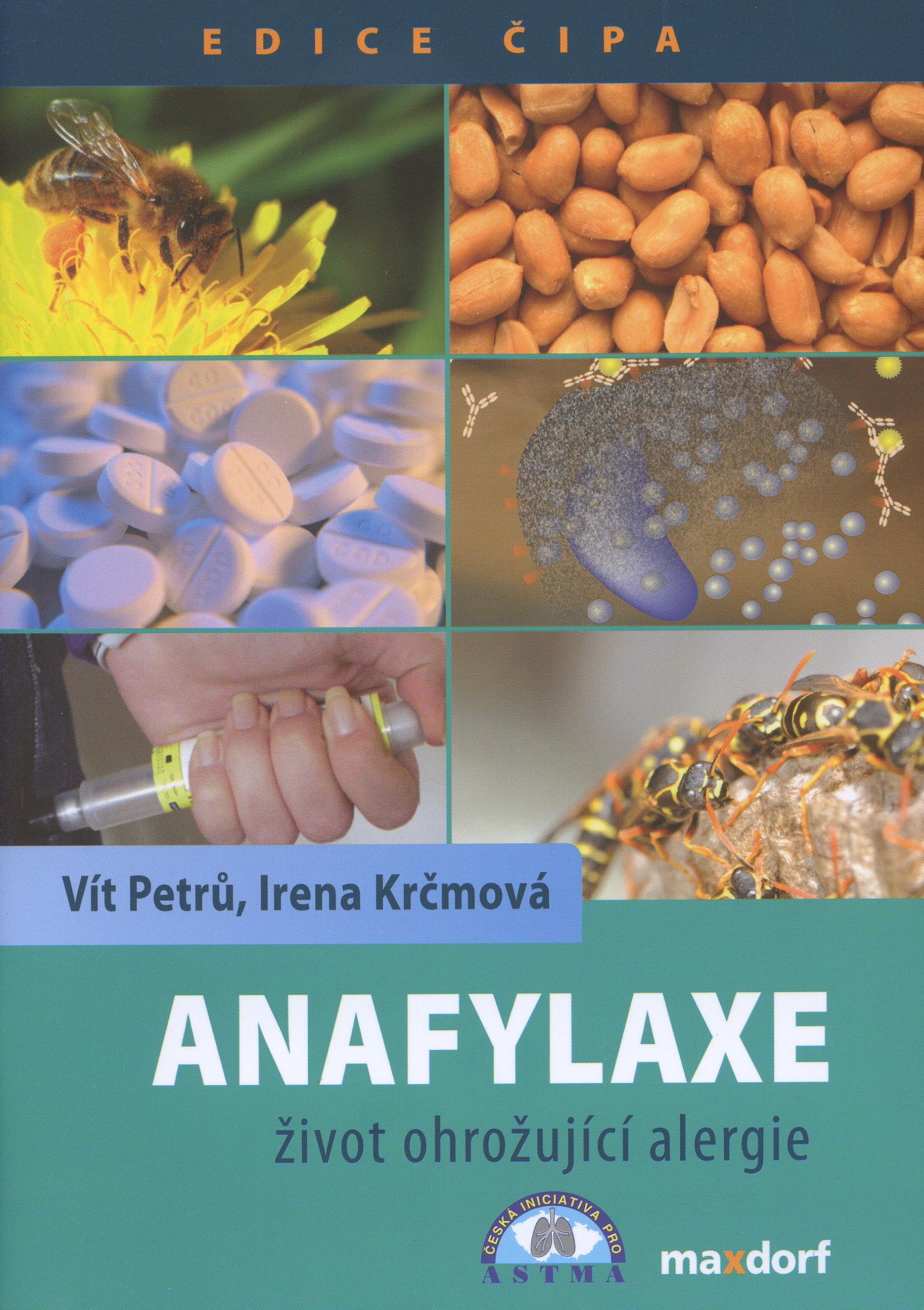 Anafylaxe - život ohrožující alergie