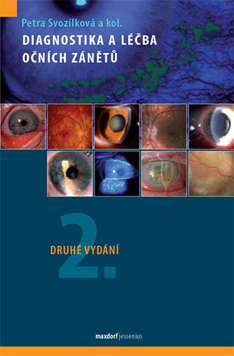 Diagnostika a léčba očních zánětů - Druhé vydání