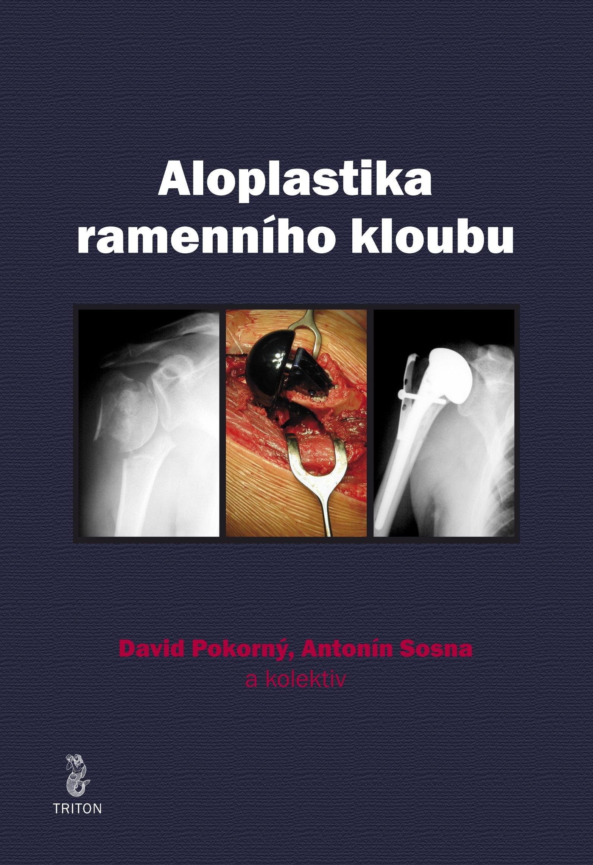 Aloplastika ramenního kloubu