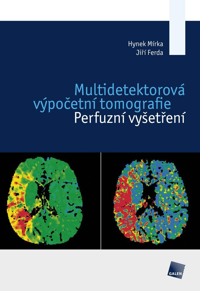 Multidetektorová výpočetní tomografie - Perfuzní vyšetření