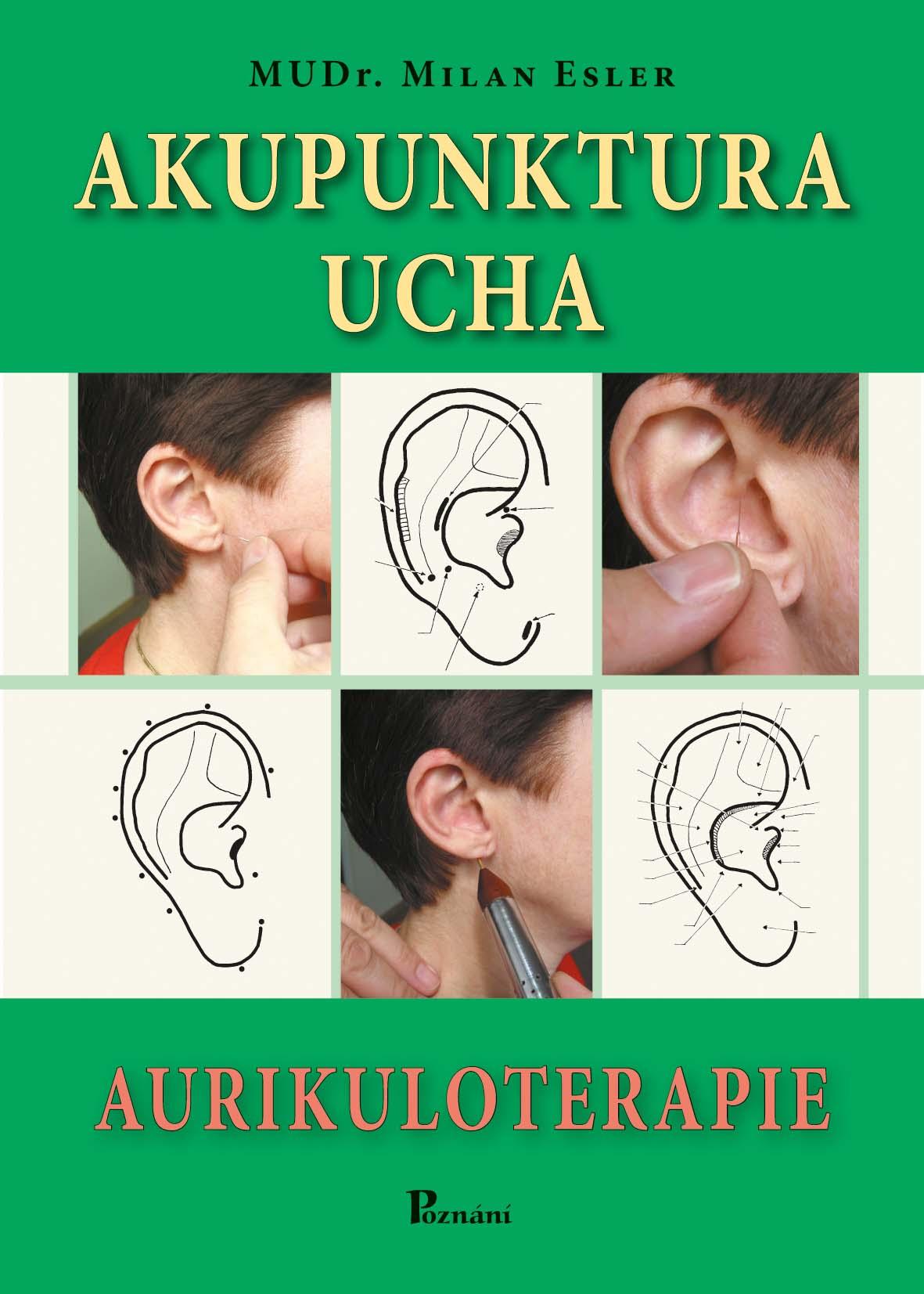 Akupunktura ucha - Aurikuloterapie